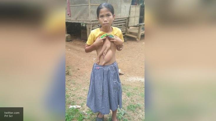 Фото девочек 14 лет без одежды пятна на теле мужчины фото