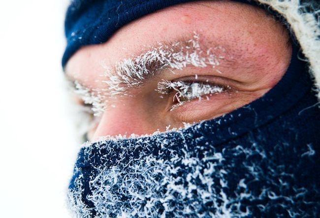Сприходом февральских холодов девять тюменцев получили обморожения